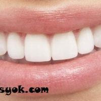 lamina diş kaplamaları, sağlıklı dişler, lamina diş fiyatları