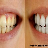 diş beyazlatma kalemi, diş beyazlatma kaleminin etkileri, diş beyazlatma kalemi kullanımı