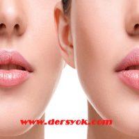 yüz botoksu nasıl yapılır, yüz botoksunun olumsuz yanları, yüz botoksunun faydaları