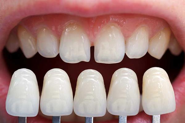 lamine diş yaptırma, lamine diş uygulaması, lamine diş uygulaması nasıl yapılır