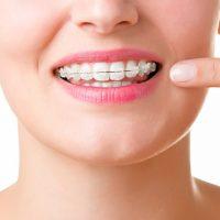 diş estetiği uzmanı, diş estetiği yaptırma
