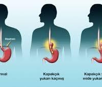 Mide yanması, mide yanmasına çözüm, mide yanmasına doğal çözümler
