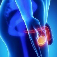 Prostat kanseri belirtileri nelerdir, Prostat kanseri nedir, Prostat kanseri nasıl tedavi edilir