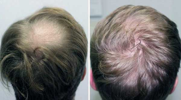 saç dökülme sorunu, saç niye dökülür, saç dökülmesinin sebepleri