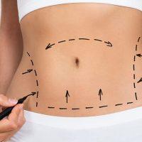 karın germe estetiği, karın germe operasyonu, liposuction işlemi