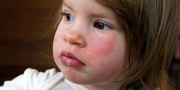 anafilaksi ne demek, anafilaksi nasıl önlenir, anafilaksiye ne sebep olur