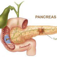 kronik pankreatit tedavisi, kronik pankreatit hastalığında cerrahi tedavi, kronik pankreatit hastalığının tedavisi nasıldır