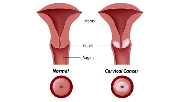 rahim ağzı kanseri, rahim ağzı kanseri teşhisi, rahim ağzı kanseri tedavisi