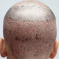 saç ekimi, saç ekimi yapımı, saç ekiminde dikkat edilmesi gerekenler